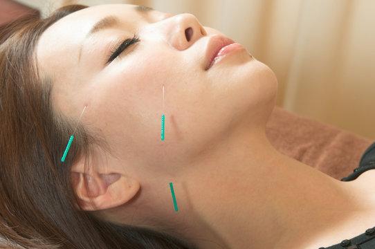 日本人女性の顔に美容鍼