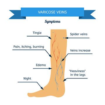 Symptoms of varicose veins. Women leg veins in profile