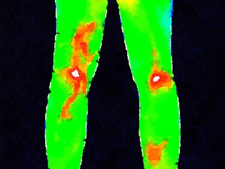 Thermographic image of the backs of legs showing different temperature in a range of colors from green showing cold to red showing hot which can indicate joint inflammation. Shows a varicose vein.