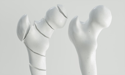 Fracture of the femur - breakpoints - 3D Rendering