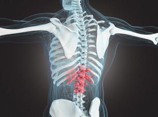 Scheletro osseo con frattura o dolore alla spina dorsale