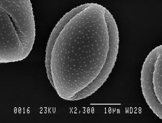 Single Lesser Celandine pollen grain