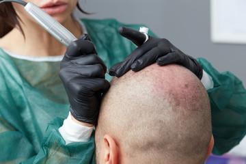 professional tattooist making permanent make up on man skin head - Tricopigmentation