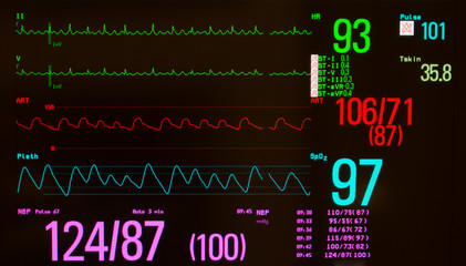 Monitor with black screen showing atrial flutter on green lines, arterial blood pressure on red line, oxygen saturation on blue line, noninvasive blood pressure in fuchsia and temperature.