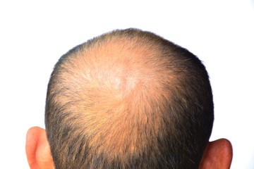 Head of man lose one's hair, glabrous on his head for elderly man