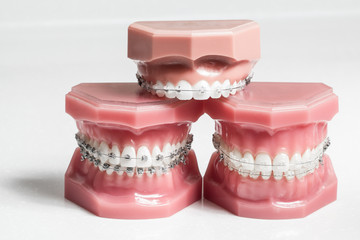 Three model jaws with wire braces stacked, example of dental and orthodontic technology for teeth alignment