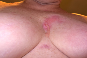Staphylococcus Infection in between breasts of mature woman