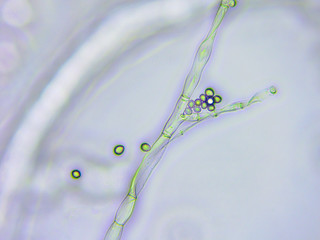Mold microscopic view x400 magnification