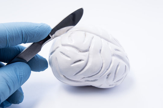 Concept of brain surgery or neurosurgery. Neurosurgeon holding scalpel in hand over 3D anatomical model of human brain. Brain surgery operations for treatment of diseases - tumor, aneurysm, epilepsy