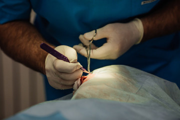 surgeon putting on stitches during cosmetic plastic surgery