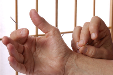 Acupuncture Treatment on Hands and Fingers