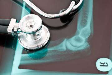 Röntgenbild Armgelenk