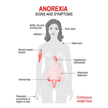 Anorexia nervosa. Signs and symptoms.