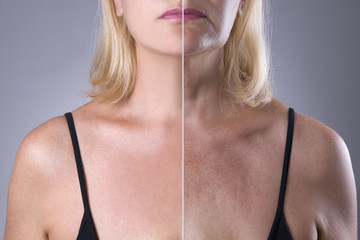Rejuvenation woman's skin, before after anti aging concept, wrinkle treatment, facelift and plastic surgery