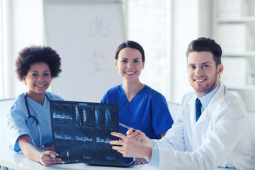 group of happy doctors discussing x-ray image