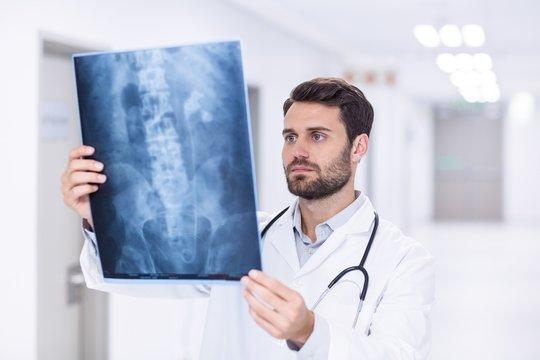 Male doctor examining x-ray