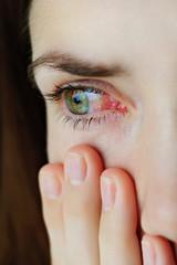 Closeup of irritated or infected red bloodshot eyes - conjunctivitis
