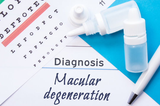 Ophthalmology diagnosis Macular Degeneration. Snellen (eye) chart, two bottles of eye drops (medications) lying on note with inscription Macular Degeneration diagnosis in ophthalmologist office