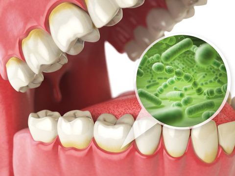 Bacterias and viruses around tooth. Dental hygiene medical conce