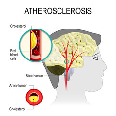 Cerebral artery with atherosclerosis