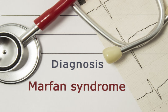 Cardiac diagnosis of Marfan Syndrome. On doctor workplace are red stethoscope, printed on paper ECG line and a pen close up lying on medical handbook, which indicated diagnosis of Marfan Syndrome
