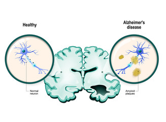 Alzheimer's disease. Neurons and brain