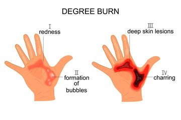 degree burn