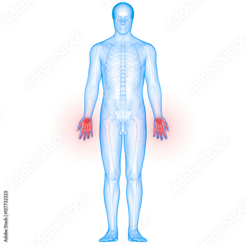 Human Body Bone Joint Pains Anatomy Finger Joints Stock Photo And
