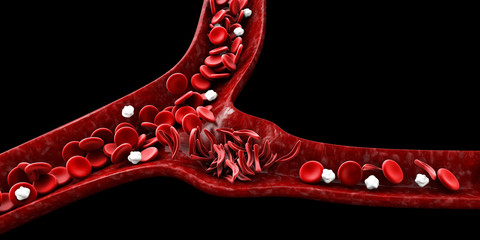 Sickle cell anemia, 3D illustration showing blood vessel with normal and deformed crescent