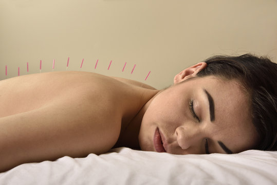 Acupuncture Therapy Chinese Medicine