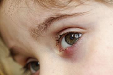 Close-up of a child's eye stye. Ophthalmic hordeolum disease