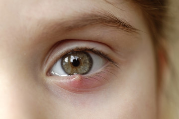 Close-up of a child's eye stye. Ophthalmic hordeolum disease