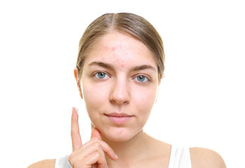 Beautiful young woman applying cream for problem skin onto face, on white background