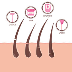Modern vector illustration of different methods of hair removal. Types of epilation.