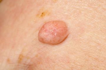 Huge wart on human skin