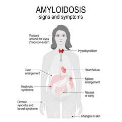 Amyloidosis. Signs and symptoms.