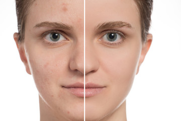 Beautiful young girl with red and white acne on her face. Before and after cream with sponge on a white background.