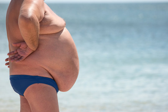 Side view of obese guy. Overweight man outdoor. Poor nutrition and sedentary lifestyle. Increased risk of heart illnesses.