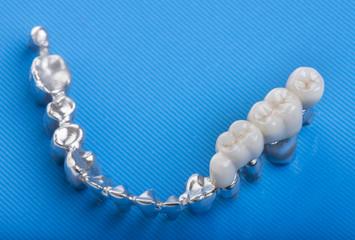 ceramic crowns in dental laboratory