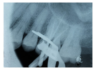X-ray of root canal treatment tooth