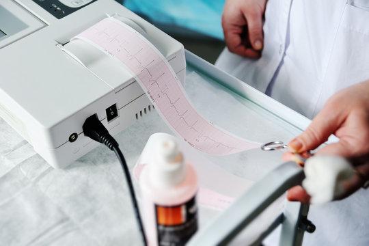 Electrocardiogram, ecg in hand. Clinic cardiology heart rhythm and pulse test closeup. Cardiogram printout.