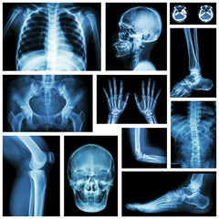 Set of x-ray multiple part of human . Skeletal system .