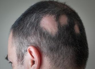 Alopecia Aerata - Spot Baldness
