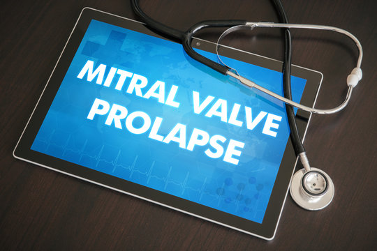Mitral valve prolapse (heart disorder) diagnosis medical concept on tablet screen with stethoscope