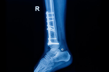 Fracture ankle fibula bone ( leg bone ) X-ray of ankle with plate and screw