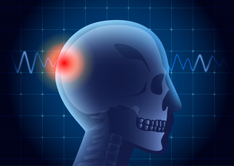 Skull of American football athlete have a red signal on physical monitor background. Illustration about medical diagnosis.