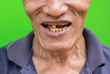 Old man smiling showing his teeth unattractive on green background. Selective focus. Soft focus.