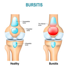Bursitis. Healthy knee and knee with bursitis