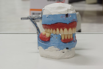 Artificial dentures in the manufacturing steps
