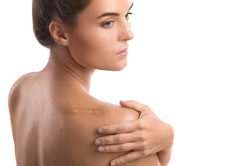 Woman with a scar on her shoulder
